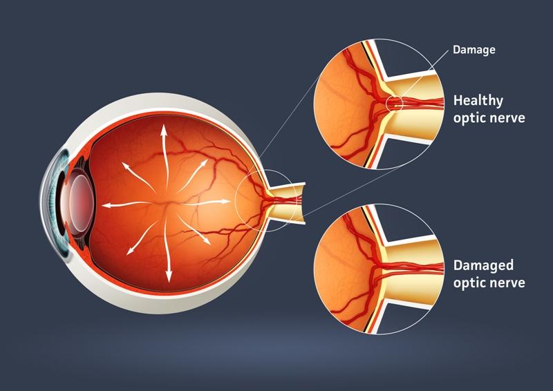 Glaucoma-diagram-big
