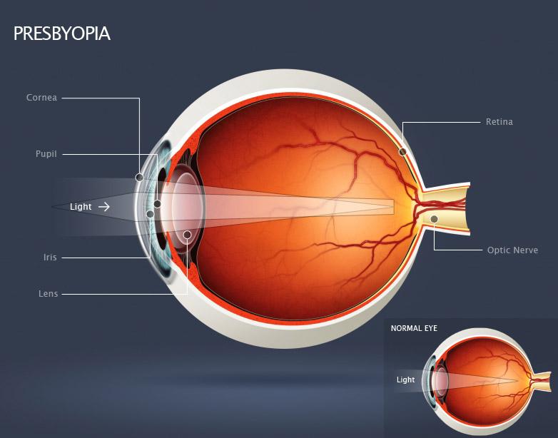 Presbyopia-image